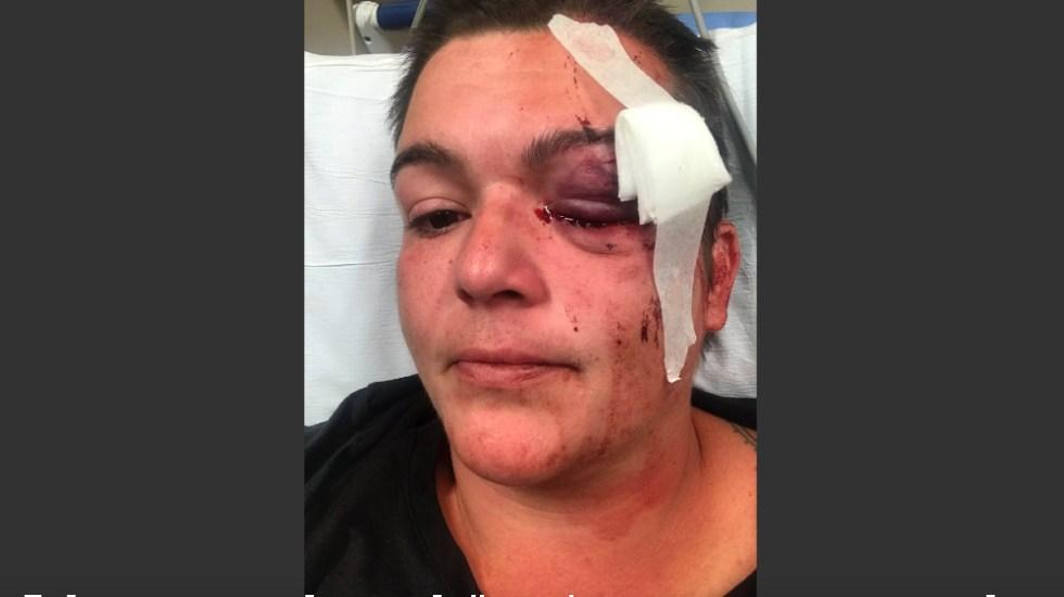 Violencia en EE.UU. es sistémica: fotógrafa que perdió ojo en protestas - Foto de EFE