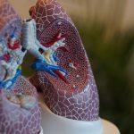 Personas con alergias son más propensas a presentar complicaciones por COVID-19
