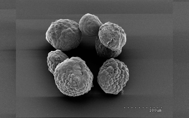 Científicos de EE.UU. afirmaron que detuvieron el desarrollo del cáncer de páncreas - Foto de Cold Spring Harbor Laboratory