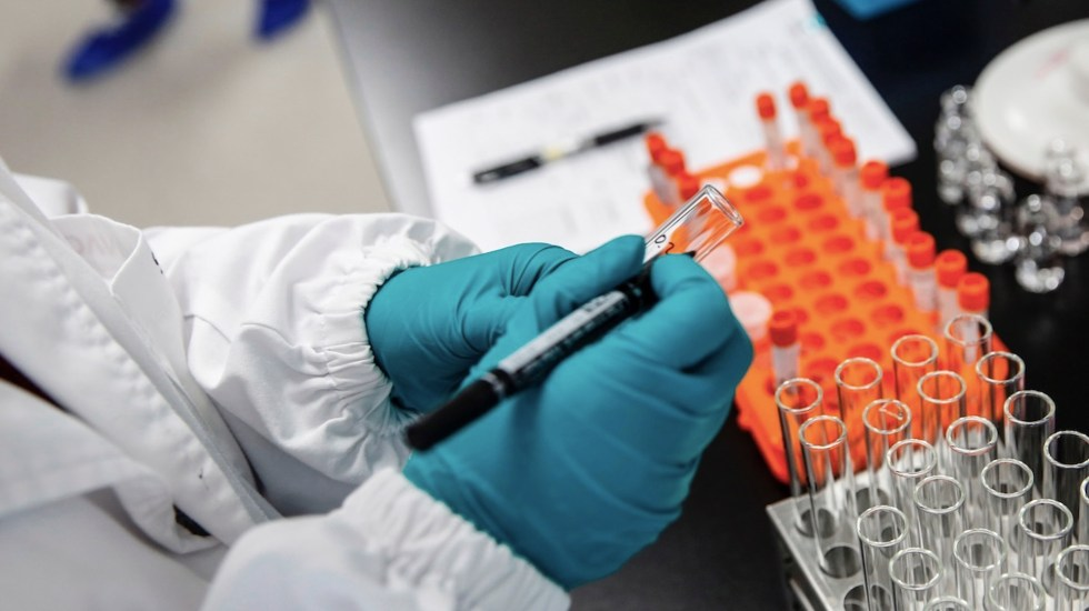 Moderna anuncia vacuna contra COVID-19 con casi 95 por ciento de efectividad - Desarrollo de vacuna contra COVID-19. Foto de EFE