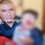 Perro pitbull muerde, en la cara, a niño de cinco años en la alcaldía Iztapalapa
