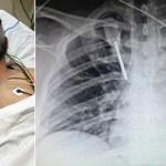 Residente de hospital del IMSS en Monterrey está fuera de peligro tras ataque con desarmador