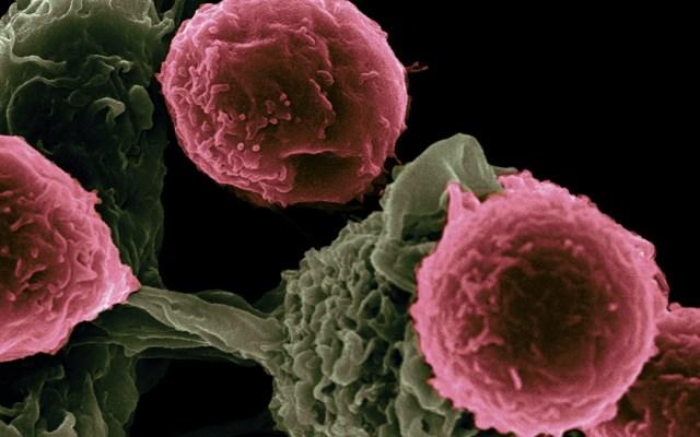 Cáncer de ovario, más letal que el de mama o el cervicouterino - Foto de National Cancer Institute para Unsplash