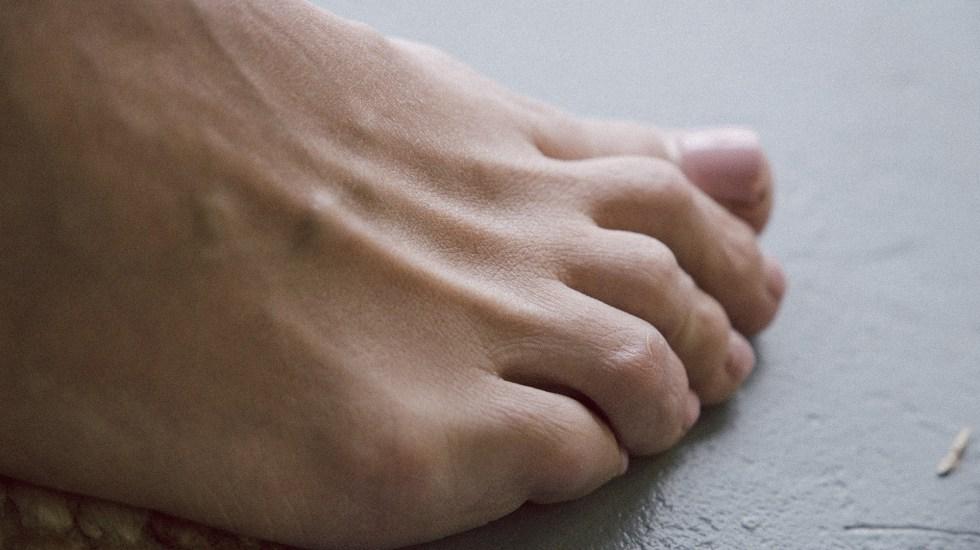 Lesiones en manos y pies podrían ser efecto de la respuesta inmune al COVID-19 - Foto de Klara Kulikova / Unsplash