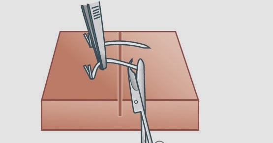 Diagram showing sutures being removed with curve tipped scissors (source: Nursing textbook)