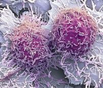 Two hepatocellular carcinoma cells, the most common type of liver cancer.