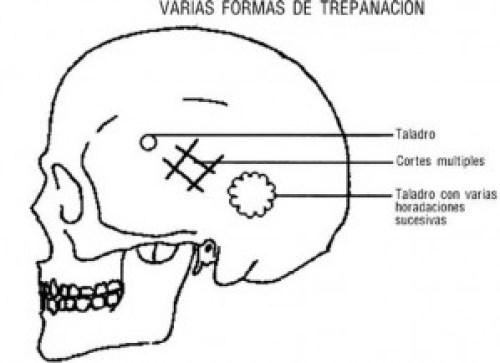 FORMAS-TREPANACION