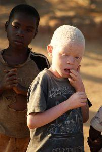 Il Malawi e l'estinzione degli albini