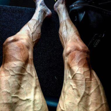 Pawel Poljanski, piernas, tour de francia, foto, instagram, 16 fechas, maltrechas