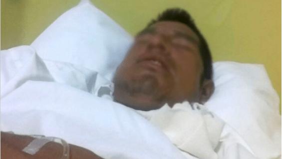 Adán Antonio Urbano, Tras Recibir, Brutal Golpiza, Árbitro, Hospitalizado, Cuicatlán, Oaxaca, Fractura, Mandibula