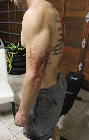 Oscar Pistorius, Asesinato Novia, Amazon Prime, Documental