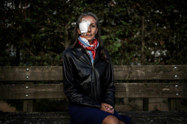 Mujer Pierde Vista Impacto Pelota Golf