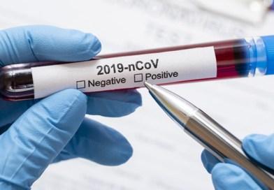 68 nuovi casi di Coronavirus nel livornese, il bollettino regionale