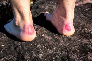 How to Treat Blisters