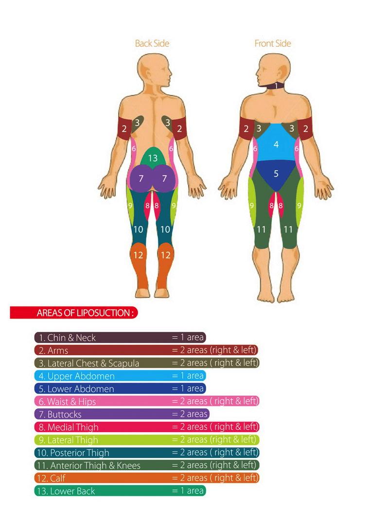 laser liposuction thailand - lotus medical international  liposuction areas diagram