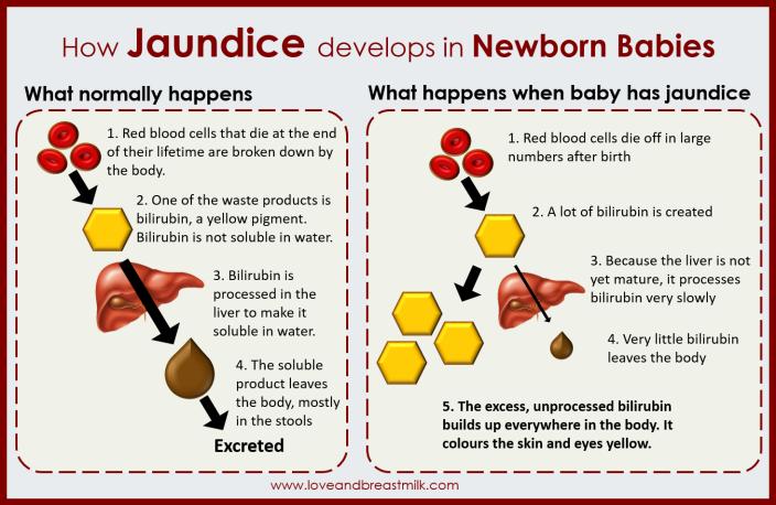 jaundice infographic