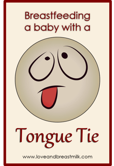 Tongue tie title