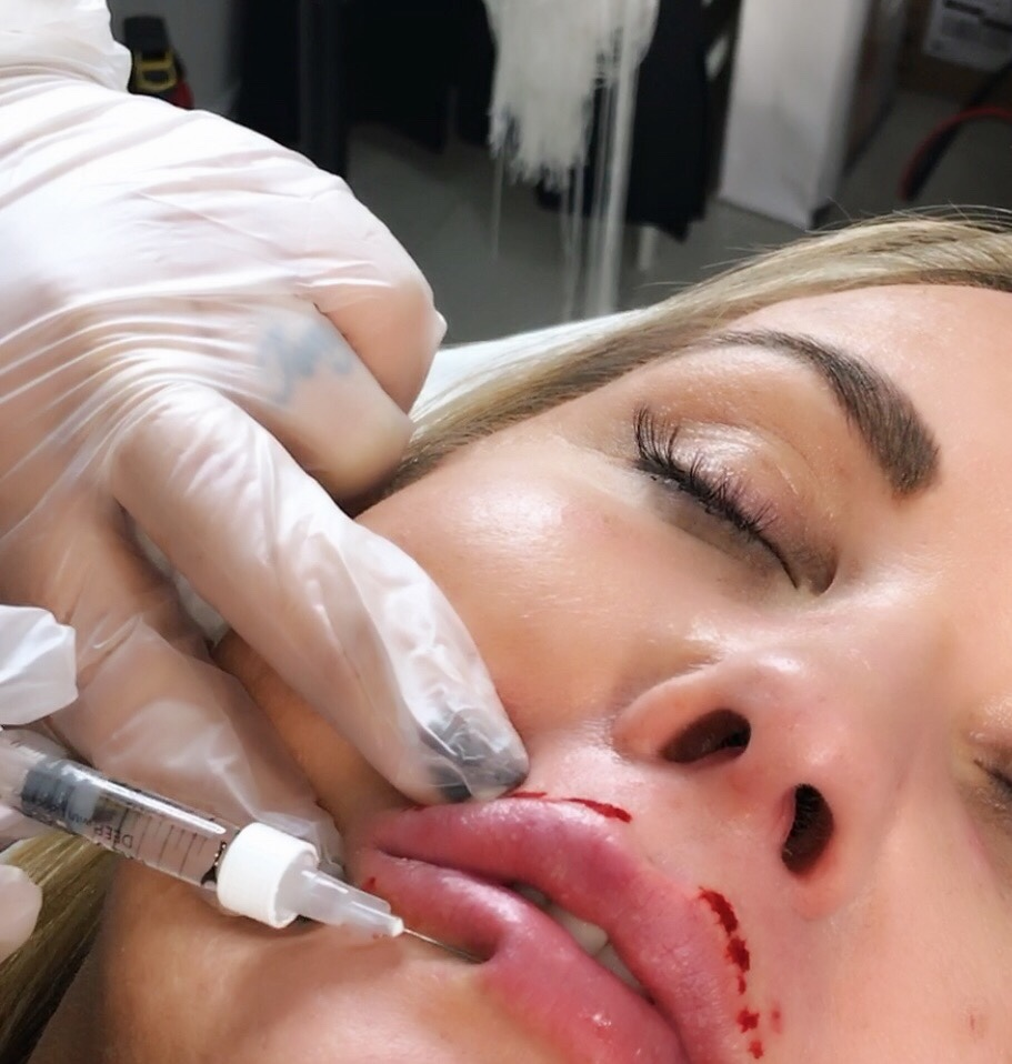 Lip Fillers in Brentwood Essex