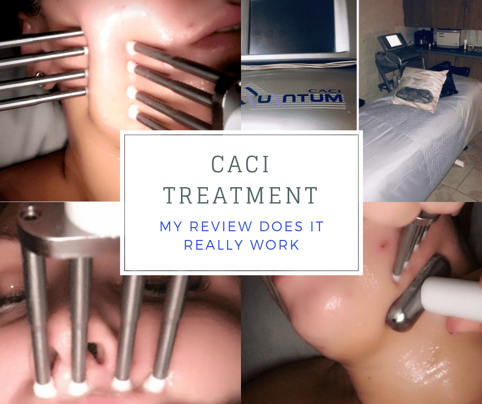 CACI Facial Review Does It Work