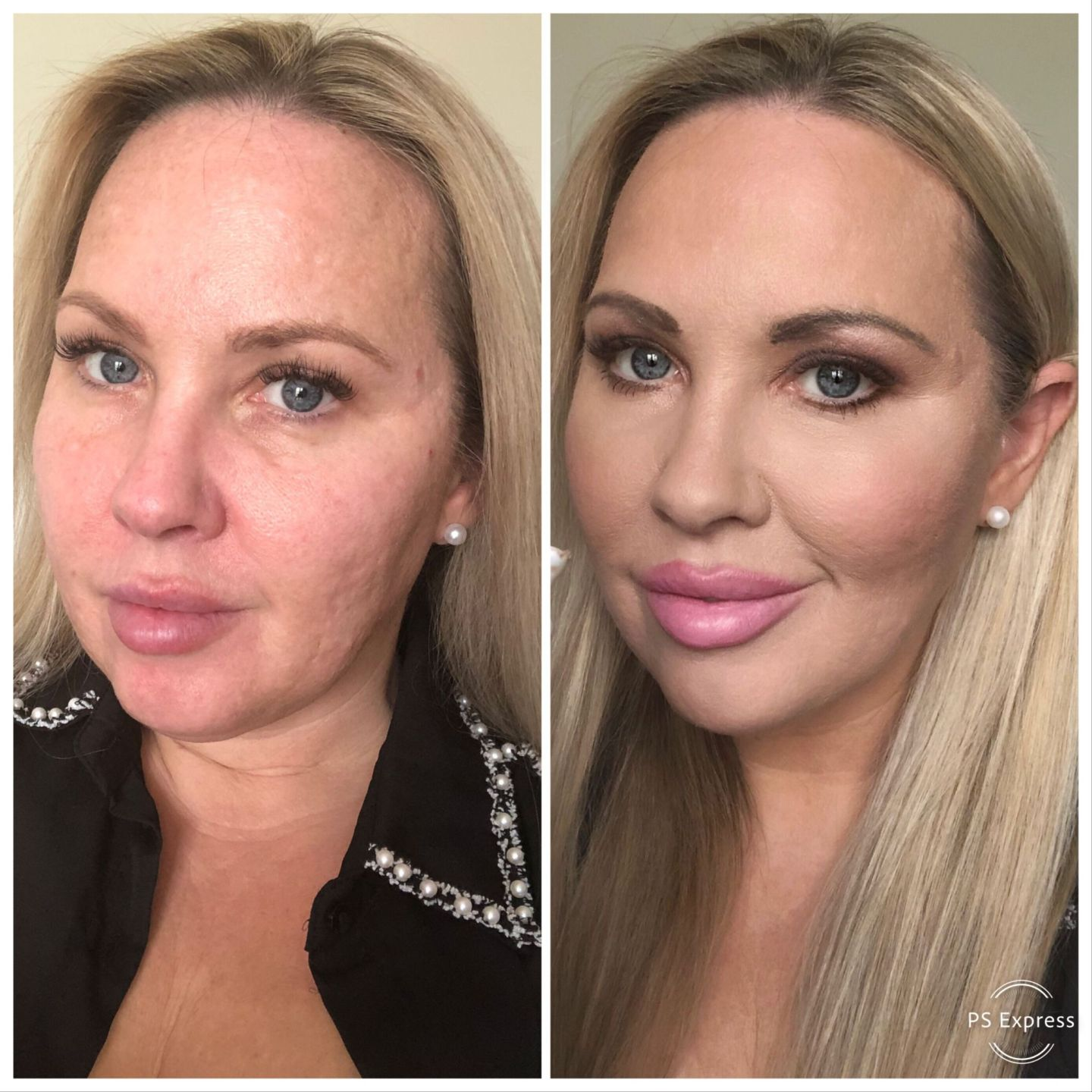 before and after photos  - Full Coverage Foundation - Phoera