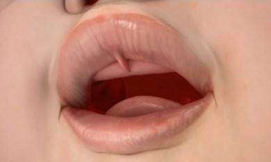 Lip Tie