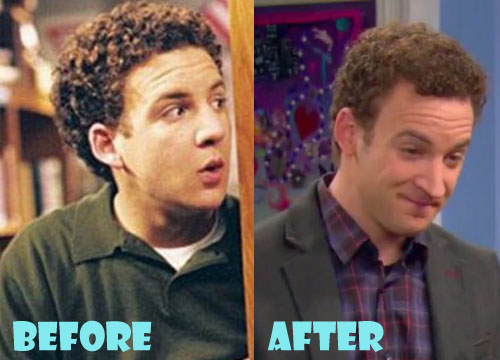 Ben Savage Plastic Surgery Nose Job