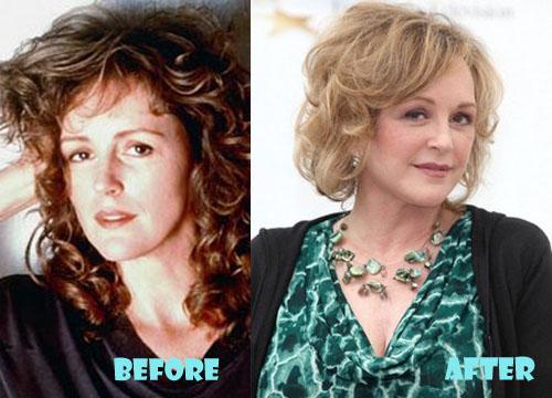 Bonnie Bedelia Plastic Surgery