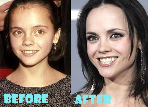 Macht christina ricci plastic surgery she's