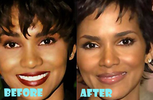 halle berry plastic surgery before and after lovely surgery celebrity before and after picture. Black Bedroom Furniture Sets. Home Design Ideas
