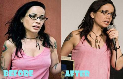 Janeane Garofalo Plastic Surgery Boob Job