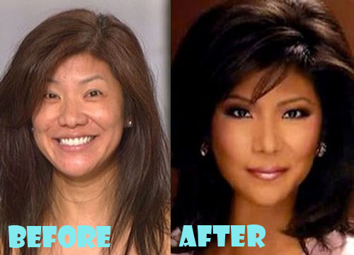 Julie Chen Plastic Surgery Before And After Nose Job