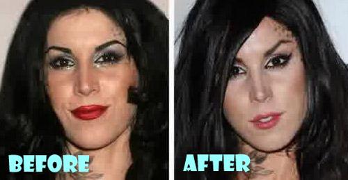 Kat Von D Plastic Surgery Botox