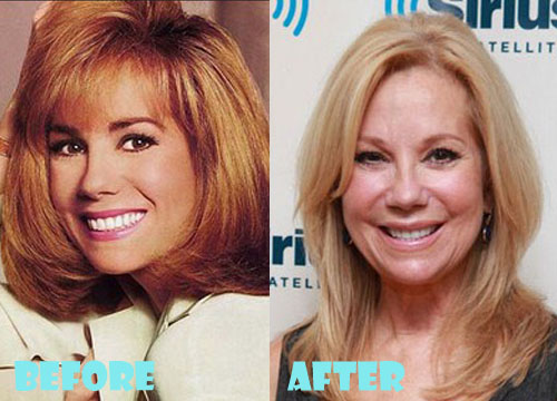 Kathie Lee Gifford Plastic Surgery