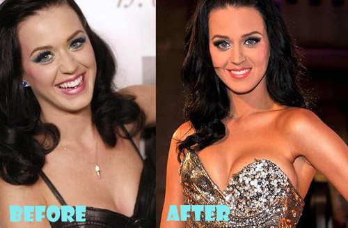 Katy Perry Plastic Surgery Before and After