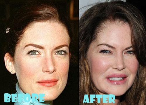 Lara Flynn Boyle Plastic Surgery Procedure