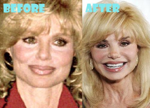 Loni Anderson Plastic Surgery
