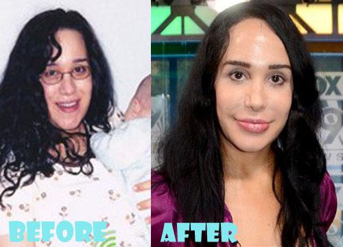Nadya Suleman Plastic Surgery