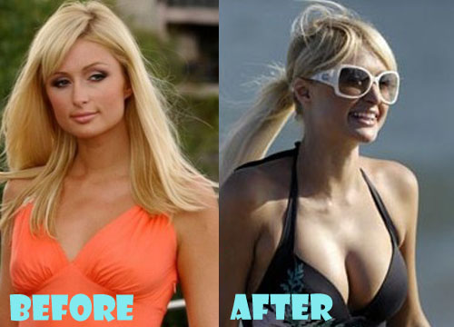 Paris Hilton Plastic Surgery Breast Implant