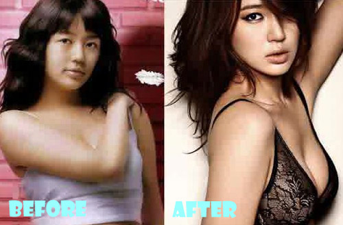 Yoon Eun Hye Plastic Surgery Breast Implant