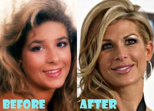 Alexis Bellino Plastic Surgery Nose Job