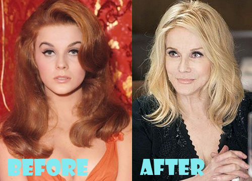 Ann Margret Plastic Surgery Before and After Pictures ...