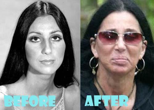 Cher Plastic Surgery Facelift