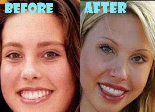 Chloe Lattanzi Plastic Surgery Lip Implant