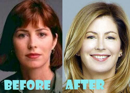 Dana Delany Plastic Surgery Botox