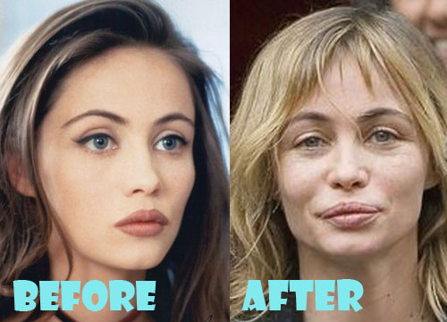 Emmanuelle Beart Bad Plastic Surgery