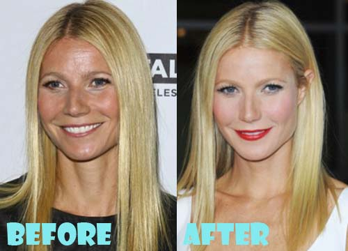 Gwyneth Paltrow Plastic Surgery Facelift