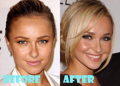 Hayden Panettiere Plastic Surgery Nose Job