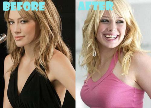 Hilary Duff Plastic Surgery Breast Implant