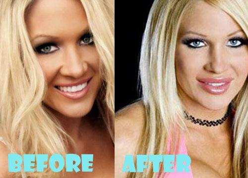 Jillian Hall Plastic Surgery
