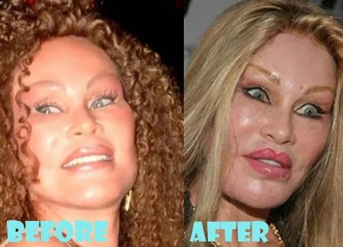 Jocelyn Wildenstein Bad Plastic Surgery